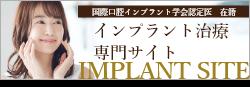インプラント治療専門サイトIMPLANT SITE