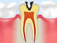 C2【象牙質の虫歯】