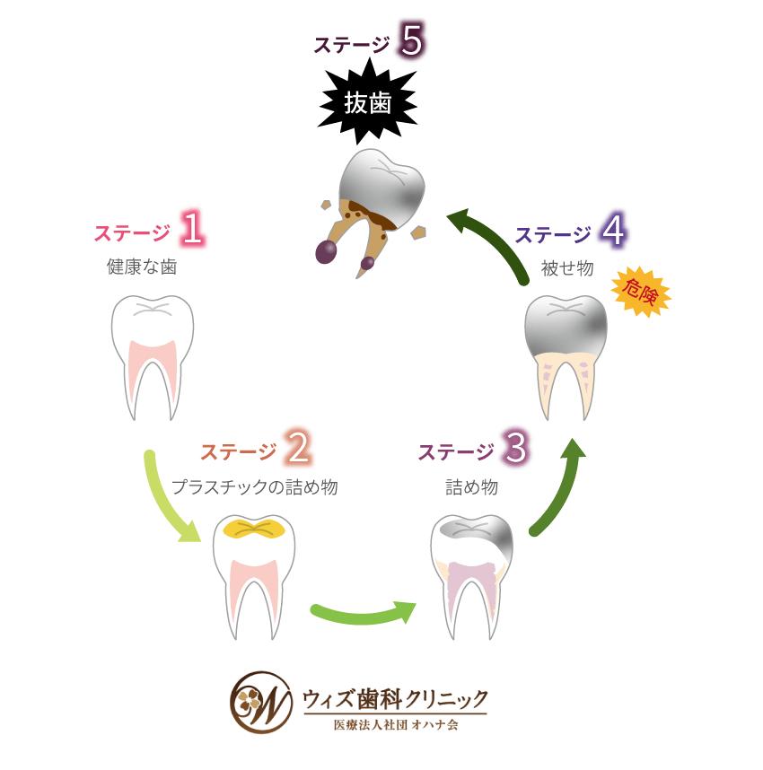 歯の一生サイクル