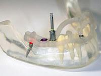 フラップレスインプラント手術を可能にする設備