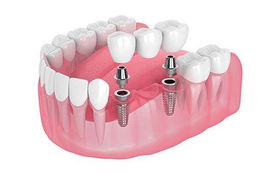 Pick up! インプラントオーバーデンチャーは部分入れ歯にも対応しています