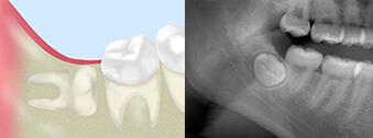 完全に埋まっているが矯正のために抜歯が必要 難易度3